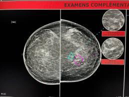 Case week 14 MammoScreen