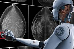 How AI may lower malpractice risks for radiologists