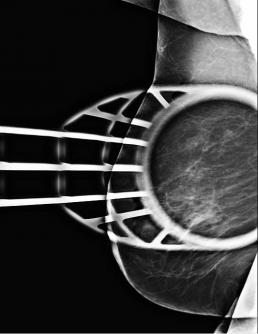 Case week 21 mammoscreen
