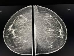 case week 22 mammoscreen