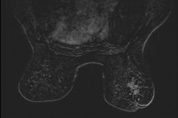 Case week 19 MammoScreen