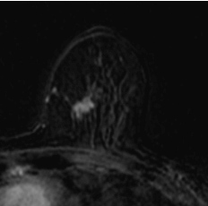 Case week 25 MammoScreen