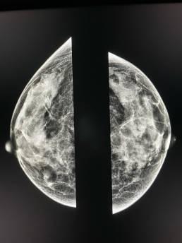 Case week 24 MammoScreen