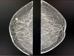 Case week 31 MammoScreen