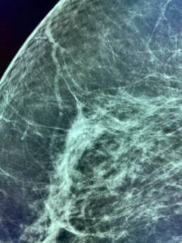 Case week 34 MammoScreen