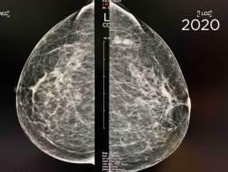Case week 35 Mammoscreen